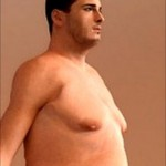 Male Breast Reduction Surgery on the Rise
