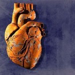 What Is Chronic Ischemic Heart Disease?