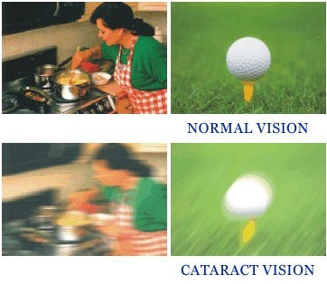 What Is Cataract and How Can It Be Fixed