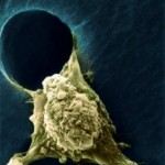 Novel Way of Preventing Metastasis in Cancer Patients