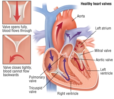 Different Types of Heart Valve Problems
